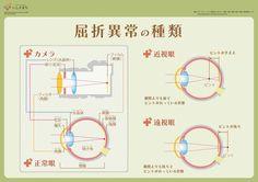屈折異常の種類_infographics