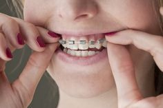 How to Make Fake Braces for Halloween (with Pictures) | eHow ~might need this later for my Mabel Pines Costume More