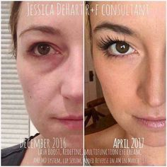 Results like this CAN be achieved with the right products! Jessica's results are GORGEOUS! She trusted Rodan+Fields and look at what her investment got her...RADIANT skin and fabulous lashes!!! (those are NOT fake lashes, they are her own natural lashes). I LOVE representing this skincare brand!! ❤