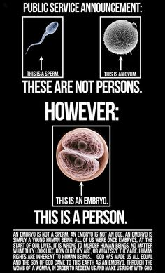 """An embryo is not """"part"""" of a human; the sperm and egg are. The embryo IS the beginning of a human life. Pro Life Quotes, Life Is Precious, Choose Life, Pro Choice, Before Us, Decir No, Wisdom, Told You So, God"""