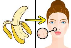 10 Unusual Ways to Use Banana Peels They help reduce acne. Rub the banana peel over your skin and leave for 5 to 10 minutes. Rinse your skin. Repeat twice daily. Back Acne Treatment, Banana Peel Uses, Banana Peels, Le Psoriasis, Banana Benefits, How To Relieve Headaches, Chemical Peel, Skin Problems, Hair Growth