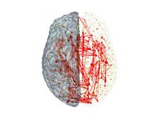 The study, published this week online in the Early Edition of the Proceedings of the National Academy of Sciences, involves researchers from Indiana University and the University Medical Center Utrecht in the Netherlands and advances their earlier findings that showed how select hubs in the brain not only are powerful in their own right but have numerous and strong connections between each other.