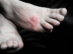 Infection chronique et périodique, la dyshidrose (et non dysidrose ou dishydrose) est une affection cutanée qui peut se révéler très handicapante : affectant les mains et les pieds, cette forme d'eczéma doit être traitée dès les premiers signes....