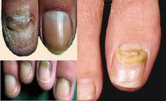 Comprar o unguento pelo tratamento de um fungo do pé