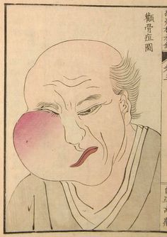 Old Japanese Medical Illustration