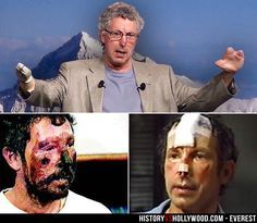 Beck Weathers' severe frostbite is visible (bottom left), in addition to his amputated nose (bottom right), and amputated arm and fingers (top). He is portrayed by Josh Brolin in the 2015 Everest movie. See more pics: http://www.historyvshollywood.com/reelfaces/everest/