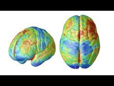 How Vaccines interfere with Child Brain Development Dr R Blaylock