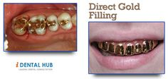 The steps of preparation of gold filling are similar to that of amalgam filling. The only difference lies in the precision and detail required for filling the tooth with gold.