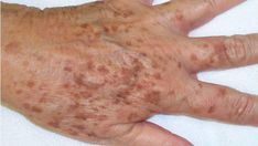 What to do about liver spots (age spots) - Hautbehandlung Age Spot Remedies, Natural Remedies, Age Spot Treatment, Liver Spot, Age Spots On Face, Age Spot Removal, Skin Problems, Health Problems, Freckles