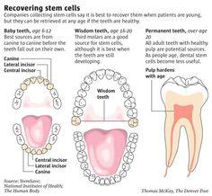 Stem Cells Found in Gum Tissue Can Fight Inflammatory Disease  #Gingivitis #StemCells