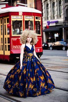 """twentyeightwickedgames: """"crime-she-typed: """" the-girl-with-albinism: """" Happy…"""