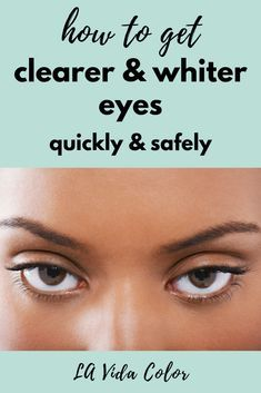 Red Eyes Remedy, Dry Eyes Causes, How To Grow Eyelashes, Eye Infections, Healthy Eyes, Eyes Problems, Eye Doctor, Clear Eyes, Eye Drops
