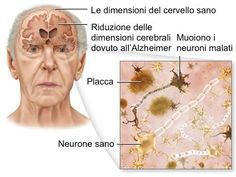 Dementia is a loss of brain function that occurs with certain diseases. Alzheimer disease (AD) is the most common form of dementia. It affects memory, thinking, and behavior. Healthy Brain, Brain Health, Bone Health, Stay Healthy, Benefits Of Berries, Brain Size, Alzheimers Awareness, Alzheimer's And Dementia, Body Tissues