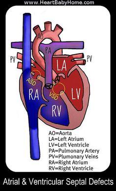 Time to be in the know how Cardiac Nursing, Pediatric Nursing, Ventricular Septal Defect, Congenital Heart Defect, Work Friends, Infancy, Nicu, Nurse Life, Nursing Students