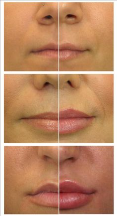 Before and After the Lip Filler Juvederm Corpus Christi Health and Wellness Internet . - Before and After Dermal Fillers Lips, Botox Fillers, Lip Fillers, Corpus Christi, Botox Lips, Lip Injections Juvederm, Botox Before And After, Glossier Lip Gloss, Lip Augmentation