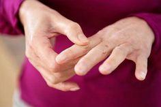 4 dolog amit könnyen megtehetsz a köszvény megelőzése érdekében! Medical Quotes, Medical Logo, Medical Humor, Health Heal, Health And Wellness, Health Tips, Diet Motivation Pictures, Fitness Motivation, Arthritis Hands