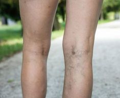 Naczynka na nogach – jak się ich pozbyć i kiedy usuwać? - Wylecz.to