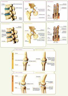 Conoce todo los que necesitas saber sobre la artrosis. Desde los sintomas hasta como cuidarse. Clínica de Artrosis y Osteoporosis S.A.S www.clinicaartrosis.com  es una entidad privada ubicada dentro del Centro comercial CENTRO SUBA - Calle 145 No. 91-19  en el Segundo piso, L10-104 en la ciudad de Bogotá D.C. República de Colombia. PBX: 571-6923370; 571-6837538, Telefax: 571-6836020, Móvil +57 314-2448344, 300-2597226, 311-2048006, 317-5905407.