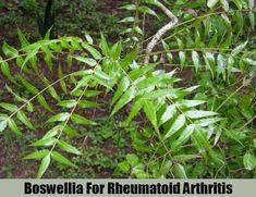 5 Best Herbal Remedies For Rheumatoid Arthritis - How To Treat Rheumatoid Arthritis With Herbs Arthritis Causes, Arthritis Remedies, Types Of Arthritis, Herbal Cure, Herbal Remedies, Turmeric Health Benefits, Light Therapy, Natural Home Remedies, Arthritis