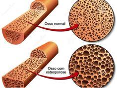 qualidade-natural-osteoporose
