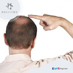 Regrowz is a natural formulation containing potent organic ingredients that provide the perfect cure for male pattern baldness stimulate Hair Regrowth Natural Hair Loss Treatment, Male Pattern Baldness, Hair System, Hair Falling Out, Testosterone Levels, Hair Breakage, Hair Starting, Hair Loss Remedies