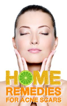 Top 5 Home Remedies for Acne Scars. Kojic acid derived from mushroom extracts are used to lighten the skin. This type of extract can be applied directly to acne blemishes or scars. Bearberry extract and vitamin C are also used in this way. Home Remedies For Skin, Acne Remedies, Natural Remedies, Diy Beauty Treatments, Skin Treatments, Acne Blemishes, Acne Scars, Diy Pedicure, Lighten Skin