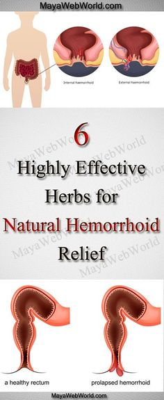 how to get rid of hemorrhoids naturally fast and easy