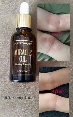 Miracle Oil! Contact me for info. Pureromance.com/phenorisjudson