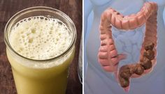 Homemade Mixture That Will Clean Your Colon Of Toxic Waste !!! -