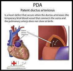 PDA  Patent Ductus Arteriosus