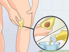 How to Naturally Stop Granuloma Annulare. Granuloma annulare (GA) is a skin condition that usually consists of small, reddish or skin-colored bumps that generally form a circular or ring pattern. Most often, GA affects the skin on your. Types Of Rashes, Your Skin, Natural Remedies, Beauty, Pictures, Image, Life Hacks, Personal Style, Homemade