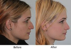 Female patient before and after receiving a turbinate reduction.