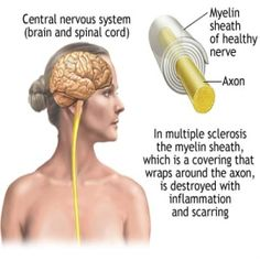 Top Natural Ways to help ease the pain of MS - Natural Treatment For Multiple Sclerosis | Home Remedies, Natural Remedy
