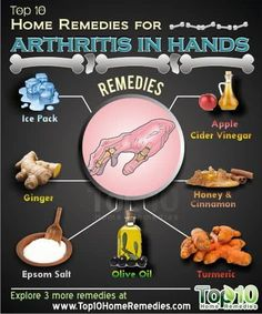 Arthritis Remedies Hands Natural Cures - Home Remedies for Arthritis in Hands. The Epsom salts are for soaking and NOT FOR DRINKING - Arthritis Remedies Hands Natural Cures Natural Cure For Arthritis, Home Remedies For Arthritis, Yoga For Arthritis, Types Of Arthritis, Arthritis Symptoms, Natural Health Remedies, Natural Cures, Natural Oil, Arthritis Relief