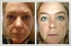 Naturally improve under eye wrinkles and eye bags without artificial means or plastic surgery. Skin care, using yoga face exercises is a cheap and extremely powerful way of minimizing and extinguishing wrinkles on the face and neck and fading eye bags. Have you tried face acupressure yoga lately? http://www.facelift-without-surgery.biz #facialgymnastics #faceexercise #facialcare #beautymakeup #skincare #health #beauty #getridofeyewrinkles #eyes #eyelines