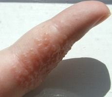 Virtually everyone suffers from mild dryness and chapping of hands at some time or another. Atopy, naturally dry skin, rubbing or scratching and climatic factors may exacerbate this condition...
