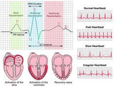 ekg interpretation made easy heart / ekg interpretation made easy . ekg interpretation made easy heart Heart Block Poem, Auswirkungen Von Stress, Ekg Interpretation, Cardiac Nursing, Nursing School Notes, Nursing Schools, Biomedical Science, Medical Anatomy, Nursing Students