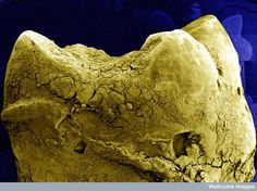 """""""Low power scanning electron microscope image of tooth surface, computer-coloured yellow on blue background."""""""