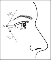 Figure 2 Cosmetic Fillers, Botox Fillers, Dermal Fillers, Facial Fillers, Botox Face, Botox Lips, Botox Brow Lift, Eyebrow Lift, Botox Injection Sites