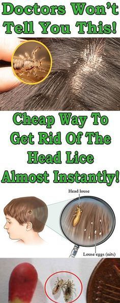 DOCTORS WON'T TELL YOU THIS – CHEAP WAY TO GET RID OF THE HEAD LICE ALMOST INSTANTLY!