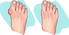 Bunion Remedies, Gout Remedies, Health Remedies, Natural Remedies, Homeopathic Remedies, Uric Acid Gout, Get Rid Of Bunions, Gout Diet, Health Tips