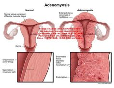 Adenomyosis. Thank you for this clear explanation!!! My 1st biopsied lap @age 17 dr said the muscle tissue was hardening and he didn't know why!! 2 surgeries and over a decade later my uterus was 3Xs normal size and they finally believed me about the pain. I should have had help or disability!!! Hard not to get angry about something so tangible they tried to make me think was in my head!