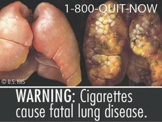 Rotting teeth, black lungs, mouth blisters… will those images stop you from smoking? Quit Smoking Tips, Smoking Weed, People Smoking, Health And Wellness, Health Care, Health Fitness, Black Lungs, Smoking Addiction, Federal