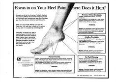 Heel Pain   Runners Heel Pain   Plantar Fasciitis Shoes