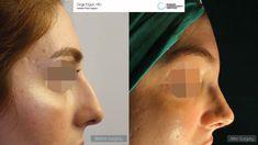 Rhinoplasty surgery Ozge ERGUN, MD ® https://ozgeergun.com.tr/en/ 📲 WhatsApp: +90 538 081 4372 #PlasticSurgery #PlasticSurgeryturkey  #NoseJob #nosejobistanbul #nosejobturkey #Rhinoplasty #rhinoplastyturkey #rhinoplastyistanbul #rinoplastia #rinoplastiaestetica #Nasenkorrektur  #Aesthetics #beauty #estética #cirugíaplástica #estetica #plastischeChirurgie #chirurgieplastique #鼻形成術 #整形手术 #جراحةالتجميل #næsekorrektion #ринопластика #realself #Rhinoplastie #Rinoplastica #Näsplastik