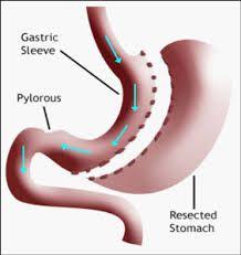 http://delhiobesityclinic.com/laparoscopic-sleeve-gastrectomy/  For #Laparoscopic #Sleeve Gastrectomy Surgery #delhiobesityclinic