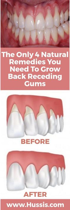 Home Remedies The Only 4 Natural Remedies You Need To Grow Back Receding Gums - The Healthy - There are a lot of reasons why gums recede and it can become quite a health problem if this happens. If you are experiencing receding gums then you have found … Teeth Health, Dental Health, Oral Health, Healthy Teeth, Dental Care, Gum Health, Kidney Health, Healthy Fats, Natural Home Remedies