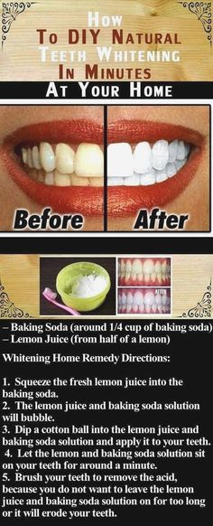 DIY Natural Teeth Whitening In Minutes At Your Home Pictures.- DIY Natural Teeth Whitening In Minutes At Your Home Pictures Photos and Images DIY Natural Teeth Whitening In Minutes At Your Home Pictures Photos and Images , # - Charcoal Teeth Whitening, Natural Teeth Whitening, Whitening Kit, Skin Whitening, Crest Whitening, Charcoal Toothpaste, Baking Soda Lemon Juice, Baking Soda Teeth, Fresh Lemon Juice