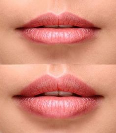 Image result for lip fillers before and after