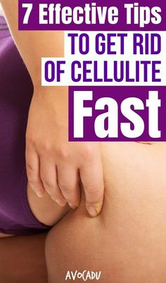 Surprisingly enough, weight gain has very little to do with cellulite formation, here are some effective tips to get rid of cellulite fast. Weight Loss Meals, Weight Loss Drinks, Fast Weight Loss, Healthy Weight Loss, Weight Gain, Weight Loss Tips, How To Lose Weight Fast, Weight Loss Products, Weight Loss Journal